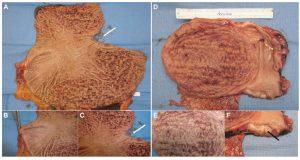 Γαστρεκτομή για πολυποδίαση στομάχου