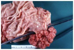 Αφαίρεση πολύποδα με σφηνοειδή εκτομή στομάχου