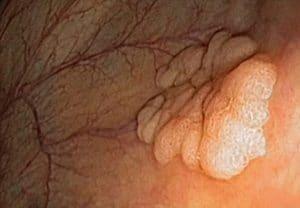 Επίπεδος πολύποδας στομάχου