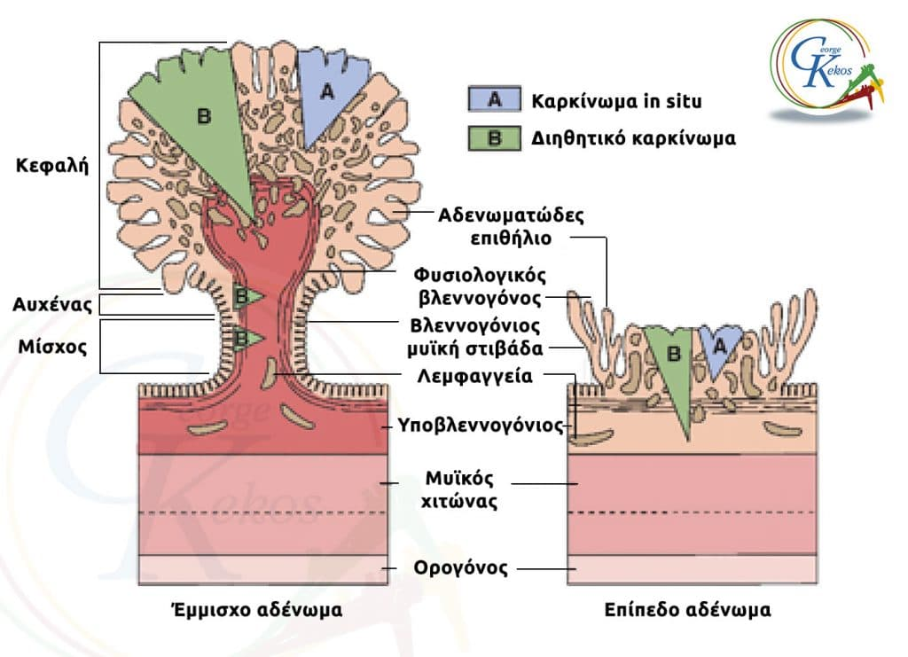 Ενδοεπιθηλιακό καρκίνωμα in situ και διηθητικό καρκίνωμα σε έμμισχο και επίπεδο αδένωμα