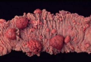Χειρουργικό παρασκεύασμα εντέρου με πολλούς πολύποδες