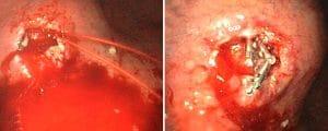 Αιμορραγία μετά από πολυπεκτομή